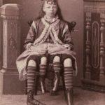 «Цирк уродов»: Страшное зрелище (фото)