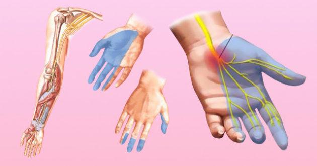 Онемение рук: причины, почему немеют руки, это опасные симптомы!