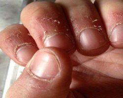 Заусенцы на пальцах: причины появления, лечение, удаление, профилактика