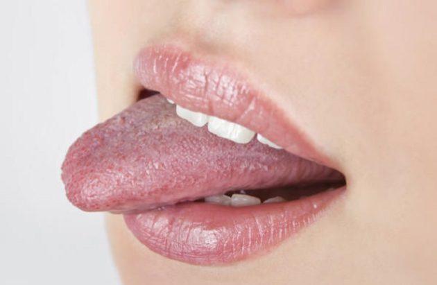 чешется язык