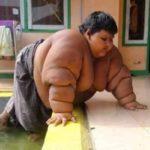 Бывший самый толстый ребенок в мире: как он сейчас выглядит